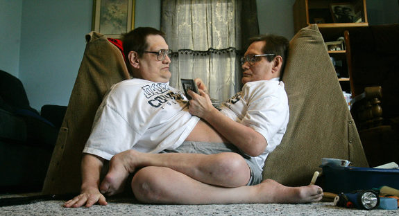 oldest living male conjoined twins