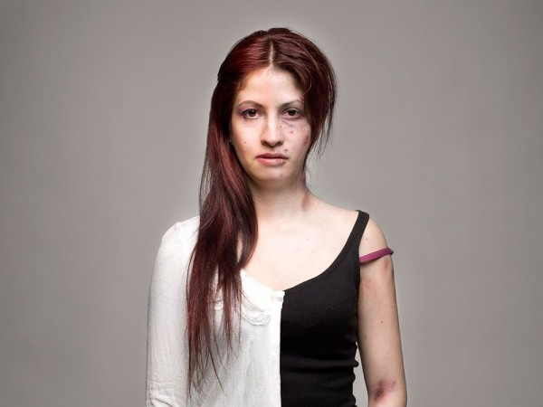 Πορτρέτα Πριν και Μετά την κατάχρηση ναρκωτικών ουσιών