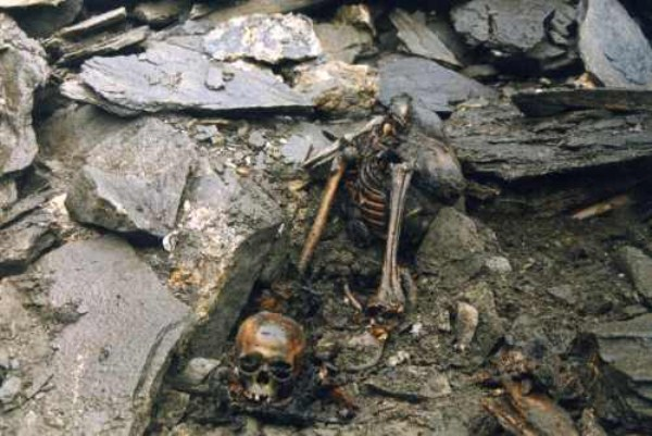 Skeleton Lake Of Roopkund