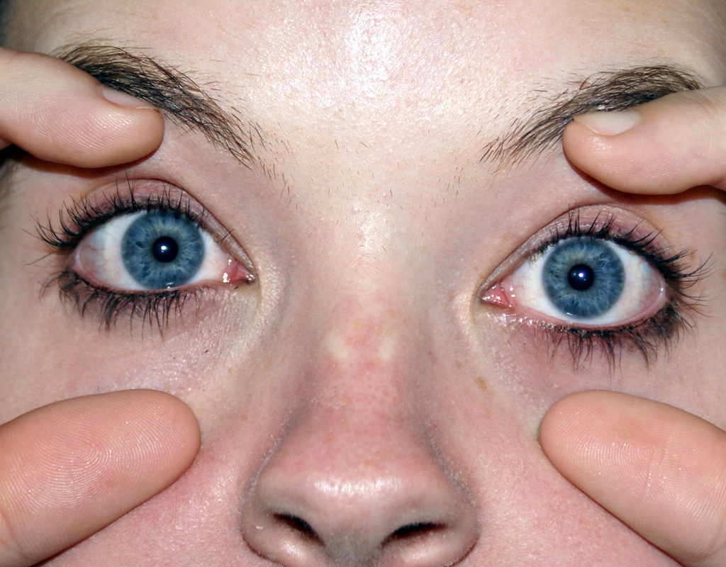 Optophobia - Fear of opening one's eyes