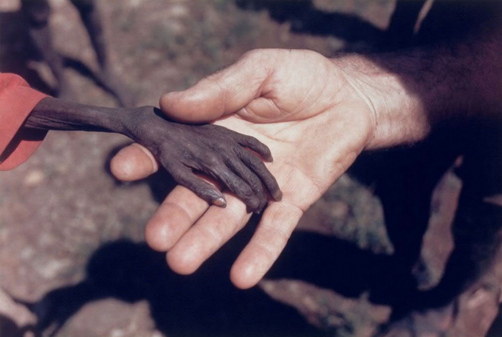 A missionary holds the hand of a starving boy in the Karamoja region of Uganda, April 1980.
