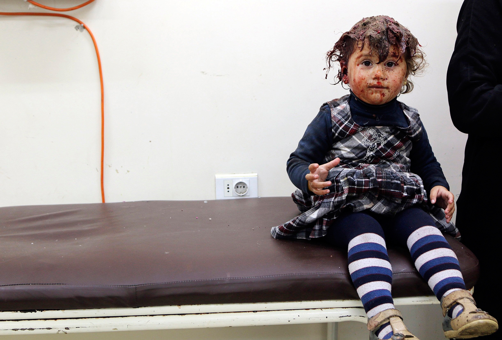 A shell-shocked syrian girl at a clinic after government airstrike.