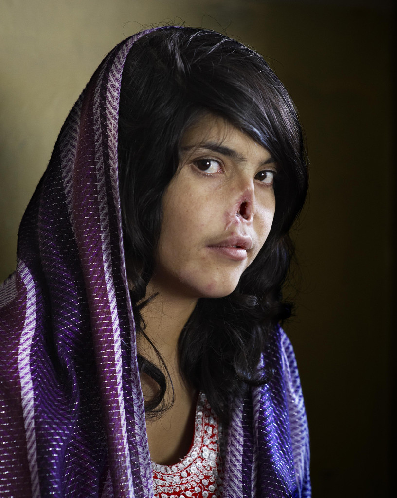 An Afghan woman who had her nose and ears cut off by the Taliban for trying to leave her husband.